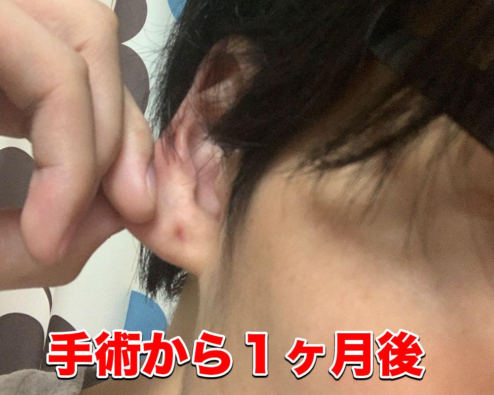 耳たぶの回復