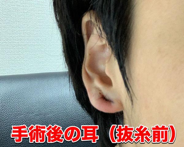 抜糸前の耳たぶ
